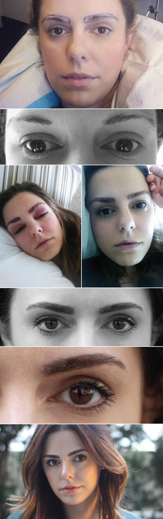 transplante-sobrancelha-beleza-como-funciona-micropigmentacao