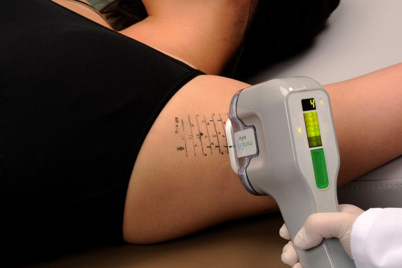 miraDry procedimento hiperidrose microondas tratamento axilas